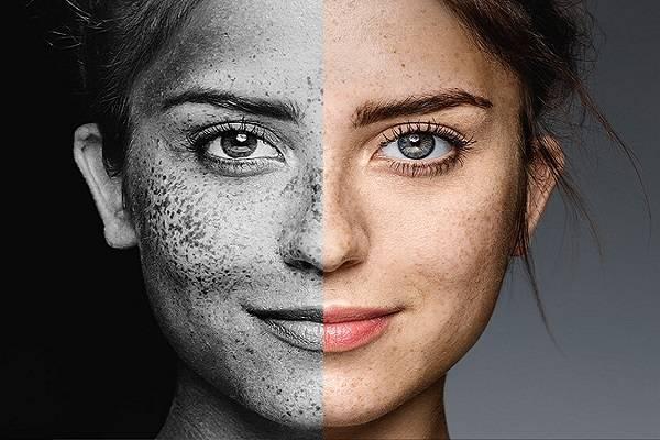 آسیب جدی که آلودگی هوا به پوست میزنه